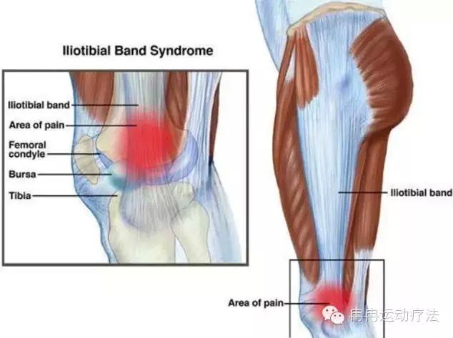 髂腔束由大腿外侧走行于胫骨前外侧,在膝关节的上方经过时覆盖股骨外