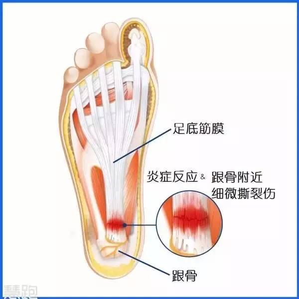 右脚底疼痛部位图解