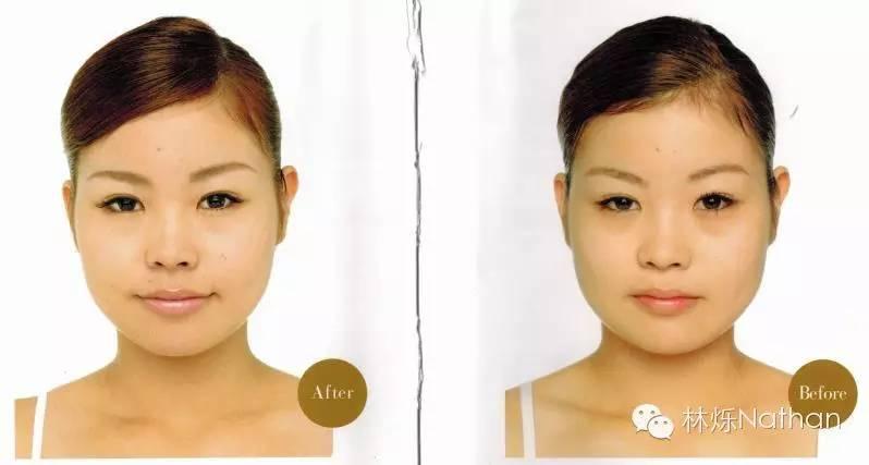 最近备课查资料,顺便看到一些日本&美国的面部整形和按摩的手法,看介绍挺有趣的,整理了下分享出来,各位有需要可以试试咯。    人类颅骨通常由29块骨头组成。除了下颌骨,其他骨头之间由骨缝连接。    由于人类脸上有筋膜还有肌肉覆着使得人的颅骨允许微量的运动,而大部分正骨的秘笈就是利用此类方法来给人给予微调。但是具体改变容易有多大呢?可能大部分有效性存在时间很短,并且改变的幅度自当无法和整容相比。但稍微试试也是可以滴    自我检测   1,用圆珠笔自我检查歪斜状况、   准备一面镜子和笔,将笔