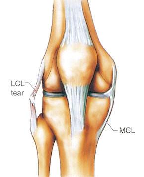 膝关节外侧副韧带损伤
